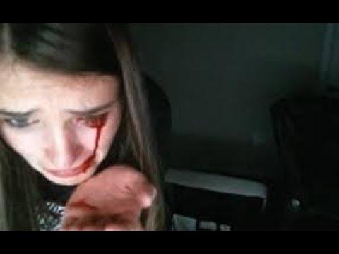 Cat Scratches Girl Eye On Stream