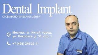 Стоматологический центр Dental Implant(Стоматологический центр «Дентал Имплант», расположенный в Городе Москве в районе Марьино, рядом со станци..., 2016-10-09T20:22:07.000Z)