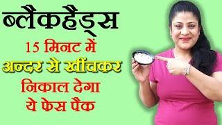 Blackheads Beauty Tips in Hindi - ब्लैकहेड्स हटाने के टिप्स Beauty Tips in Hindi by Sonia Goyal