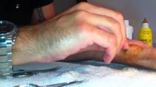 Levarsi i punti di sutura dalla mano da soli.MOV