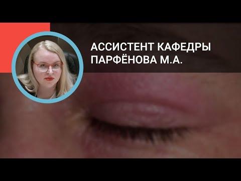 Парфёнова М.А.: Атопический дерматит