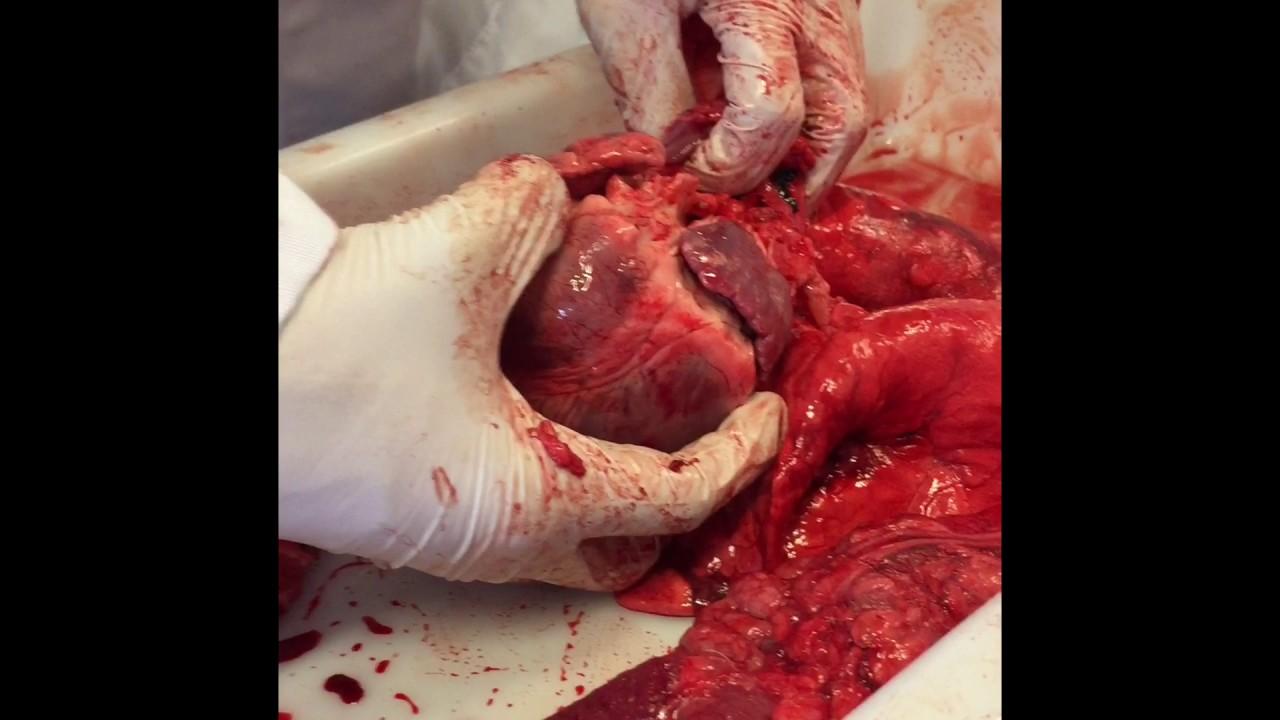 Hjerte-Lunge Dissektion