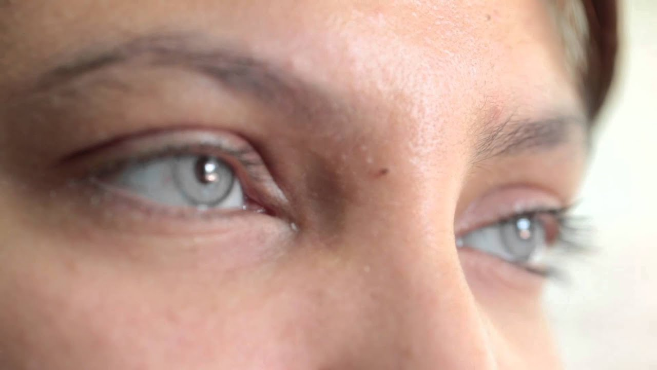 Surgery to change your eye colour in 2014 / brightocular - YouTube