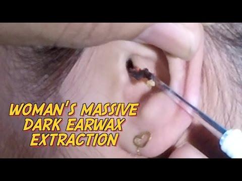 Woman's Massive Dark Earwax Extraction
