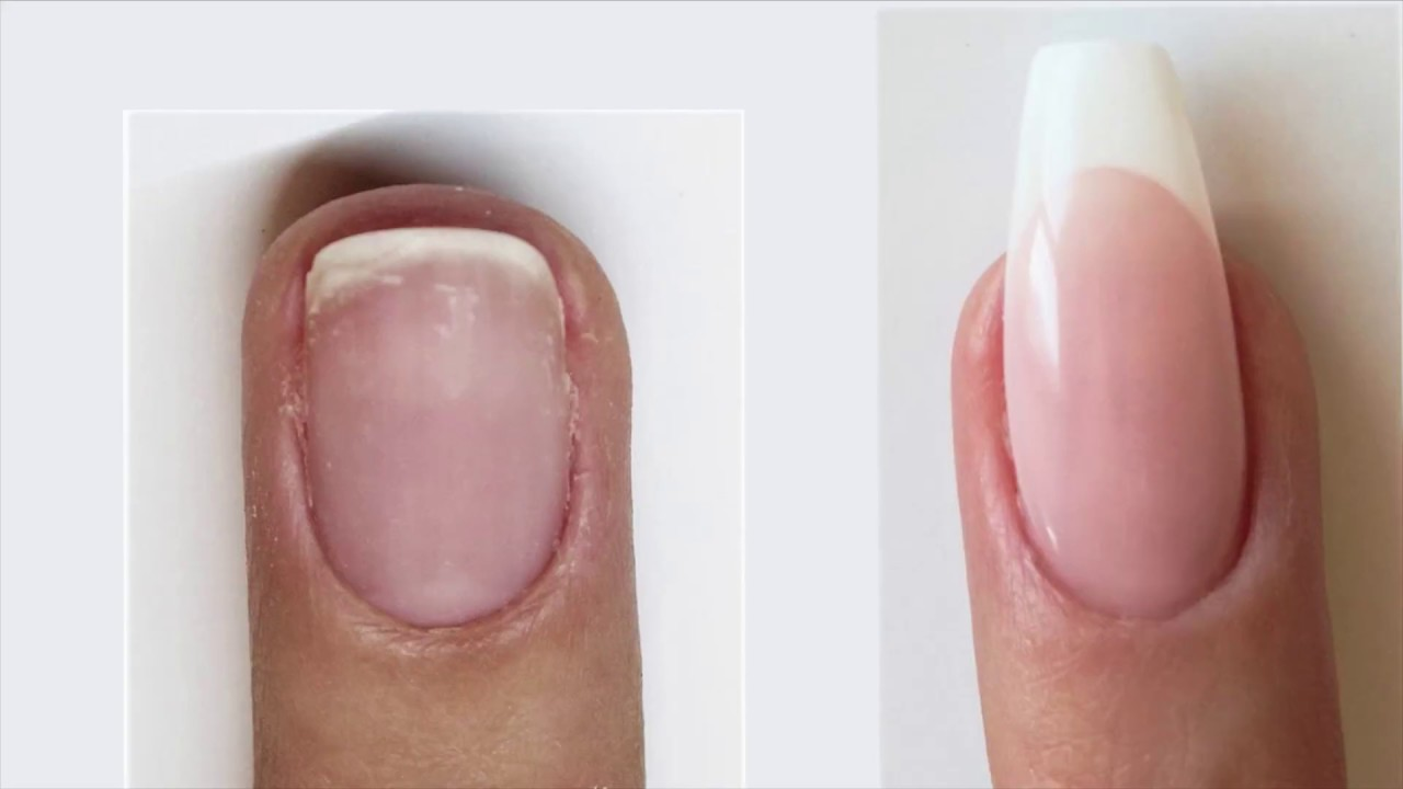 Supreme French with Nail Bed Extension and Extended Free Edge | Bio ...
