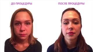 Косметология. 3D моделирование лица