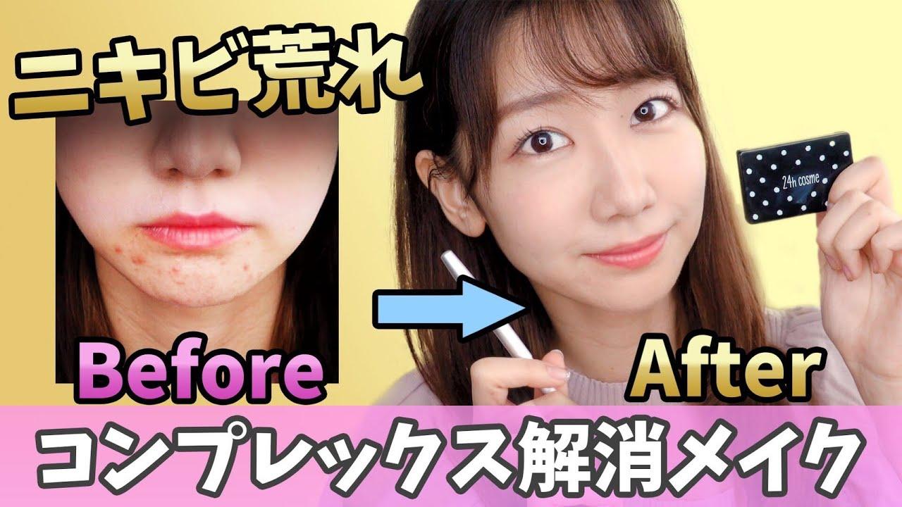 【初公開】ニキビ肌荒れを徹底的に隠すメイク術!