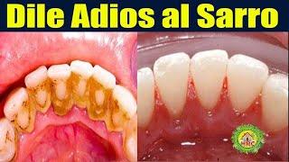 NO ES BROMA! Quita el sarro de los dientes en 2 minutos | Elimina la placa dental