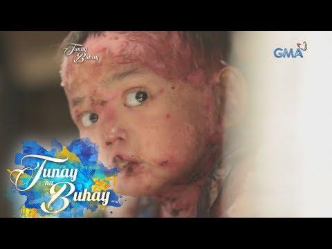 """Tunay na Buhay: Pitong taong gulang na bata, lumalaban sa """"Butterfly disease"""""""