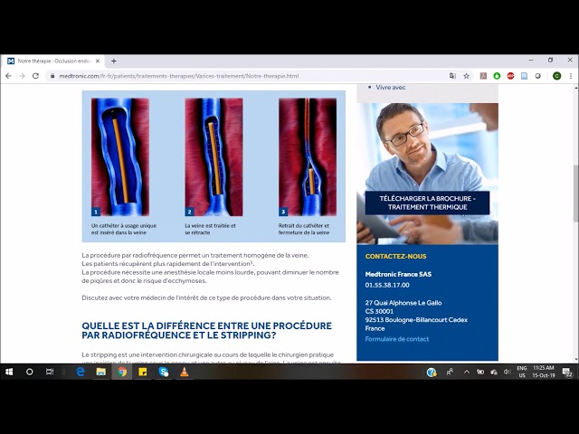 Parcours patient digital - Société Française de Phlébologie