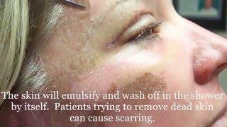 Peeling Skin  from 30% TCA peel