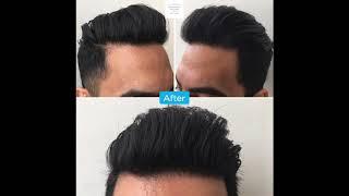 Frontal hairline hair transplant thumbnail