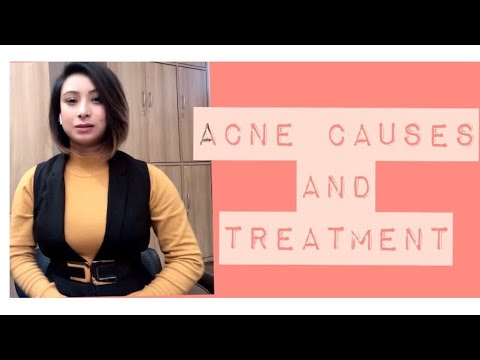 ACNE CAUSES,TREATMENT N HOMEREMEDIES#acnetreatment#acnecauses#acneclearskin#acnetreatment