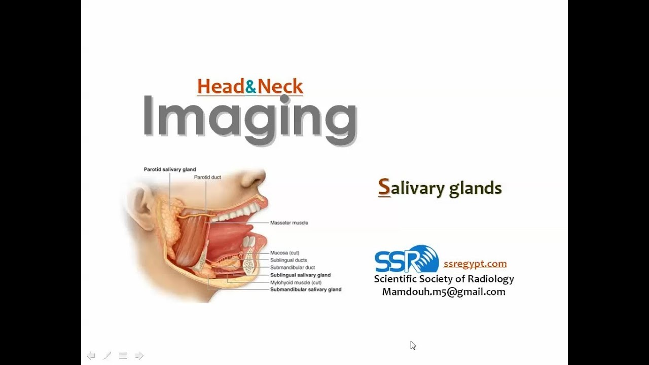 Imaging of Salivary glands- Prof Dr. Mamdouh Mahfouz (In Arabic ...