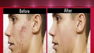 Pimple Treatment Pack