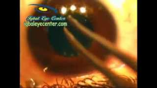 LASIK Vs PRK for  Correction of Myopia and Astigmatism