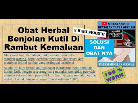 Obat Herbal Benjolan Kutil Di Rambut Kemaluan - 3 HARI ...