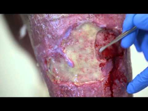 how to clean an ulcer on leg