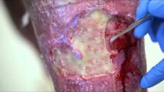 Venous Leg Ulcer Sluff Removal