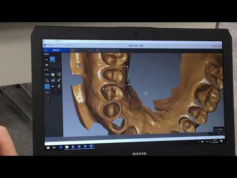 歯科用口腔内スキャナーTrophyトロフィー3DIプロのインテリジェントマッチング機能(解説ブログあり)