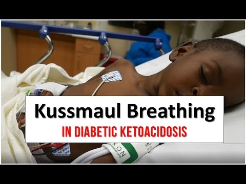 Kussmaul Breathing in Diabetic Ketoacidosis
