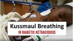 hqdefault - Diabetic Ketoacidosis Rapid Breathing