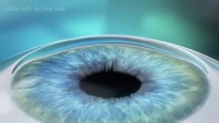 LASIK Laser Eye Surgery