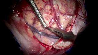 Left superior frontal gyrus (supplementary motor area-SMA)  GBM- radical microsurgery