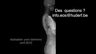 EOS : la radiologie 3D à basse dose à l'HUDERF (professionnels)