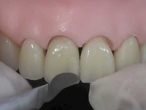 Reabilitacao Estetica Do Dente Com Resina Instrumental De Trabalho