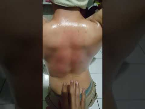 Hands Therapy - Natural Healing Therapy Indonesia