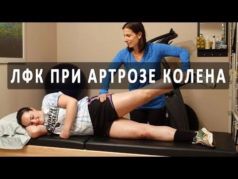 Упражнения ЛФК, помогающие лечить артроз колена