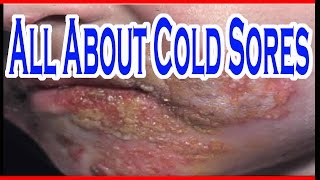All About Cold Sores, What Is Cold Sores, Cold Sores Around Lips And Mouth, How To Cure Cold Sores