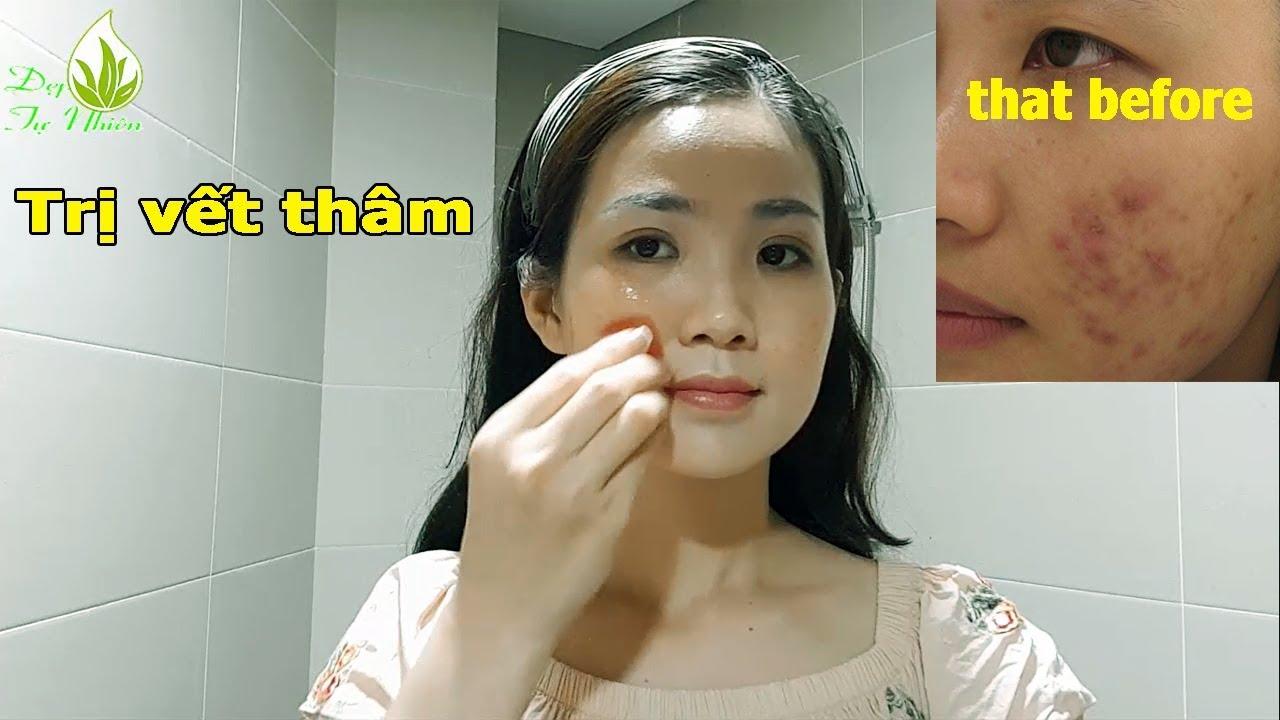 Cách Trị Sẹo Thâm Hiệu Quả Bằng Cà Chua Và Vitamin E  Đẹp Tự Nhiên