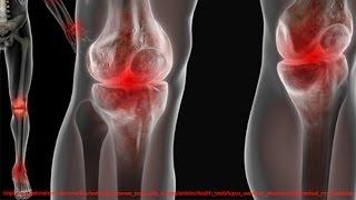 видео Лечение суставов: список лекарств от артрита, рекомендации по использованию при артрозе