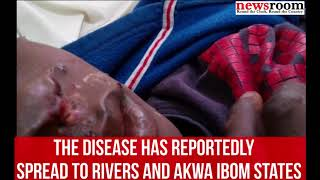 Monkey Pox disease has spread across three states in Nigeria, here are seven things you should know