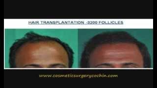 Hair transplant results Kerala- Malayalam Thumbnail