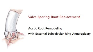 valve sparing root replacement aortic root remodeling with subvalvular ring annuloplasty