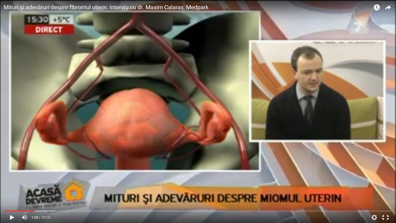 puteți pierde în greutate cu fibroame uterine)