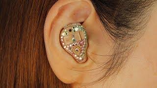 Butas ang Eardrum, Nabingi, Hearing Aid - ni Doc Gim Dimaguila #17 (Ear Nose Throat Doctor)