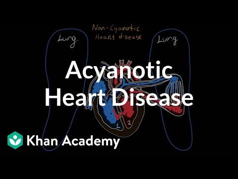 What is acyanotic heart disease? | Circulatory System and Disease | NCLEX-RN | Khan Academy