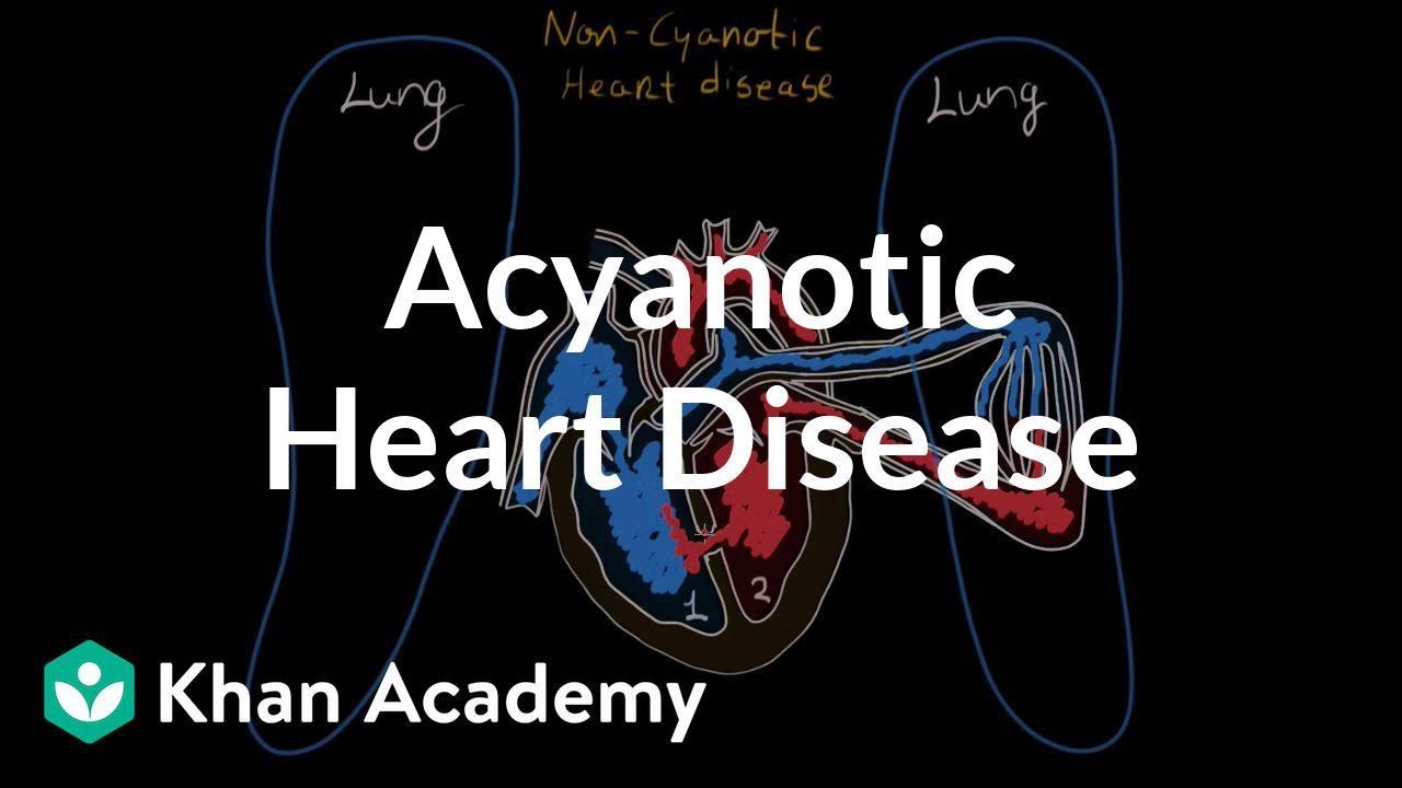 What is acyanotic heart disease? (video) | Khan Academy
