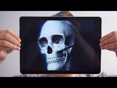 New X-Ray App For IPad?!?!