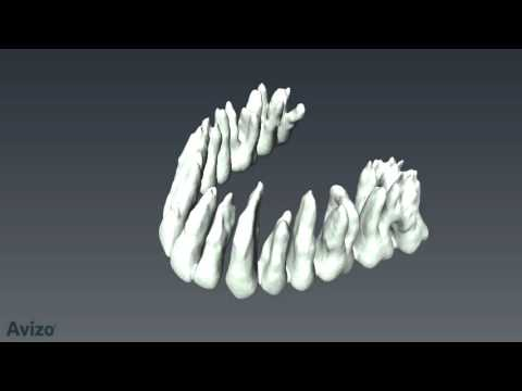 Amazing tooth segmentation video from FEI's 3D visualization solution (Avizo3D.com)