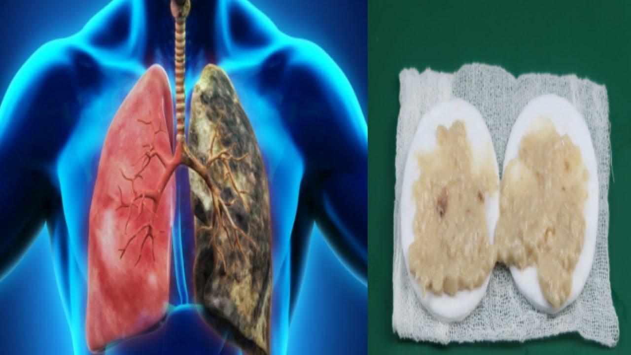 """Rețetă de la Vanga pentru varice 3 gânduri despre """"Tratarea varicelor cu medicamente populare"""""""