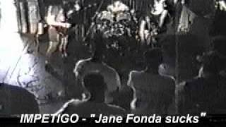 Impetigo Jane fonda sucks