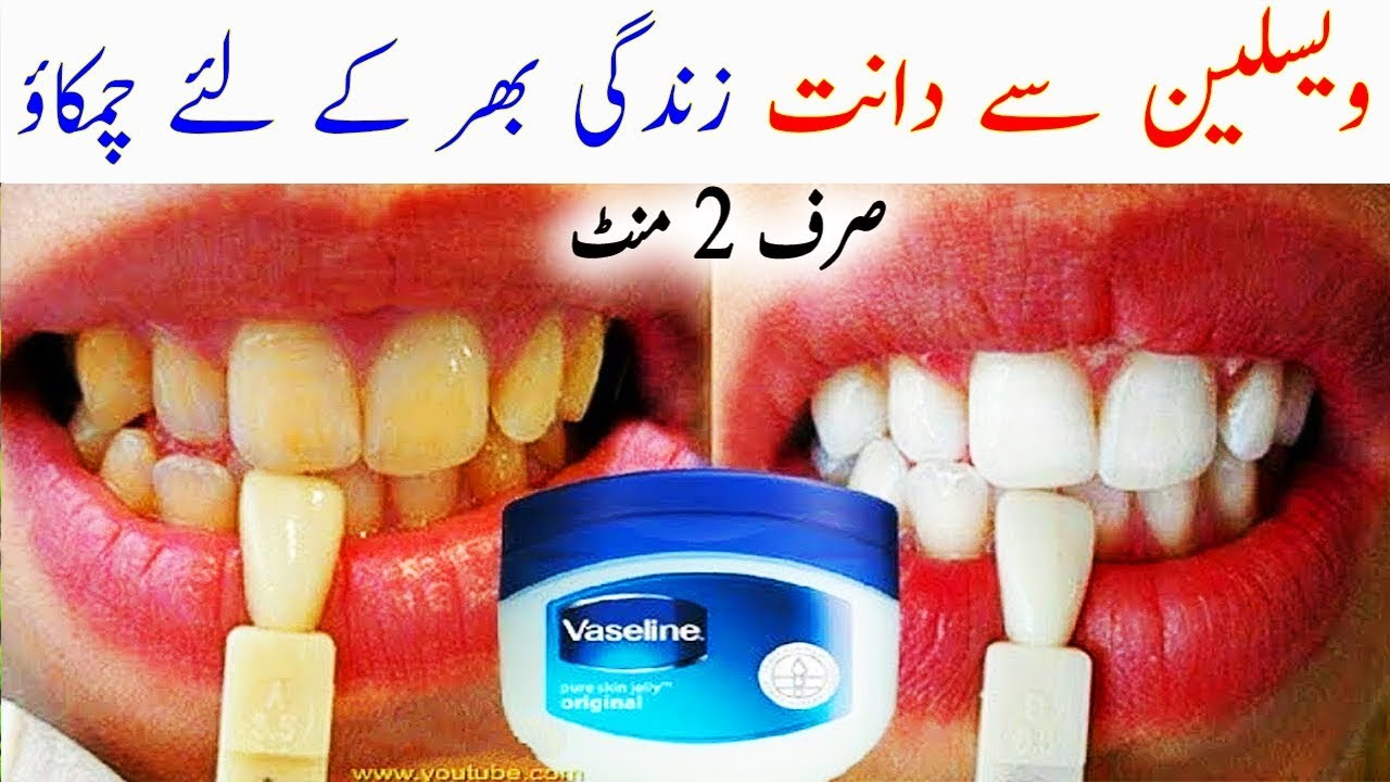 Vaseline For Teeth Whitening How To Whiten Teeth With Vaseline In
