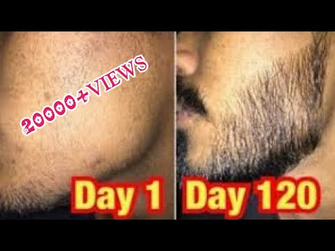minoxidil-beard-regrowth-results- -how-to-apply-minoxidil- -minoxidil-unboxing-&-review