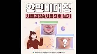 안면비대칭 치아교정 치료과정 미리보기 :: 부산 교정치…