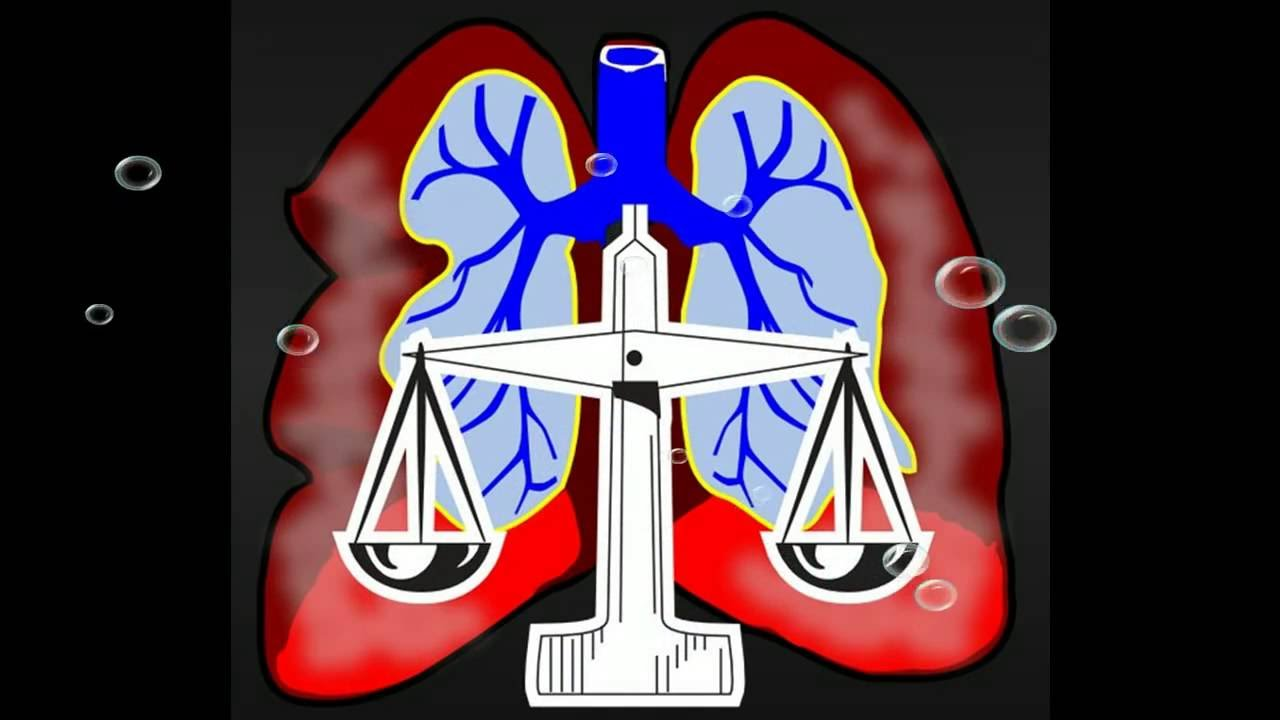 Mesothelioma Lawsuits Annuity Selling 2016K4! - YouTube